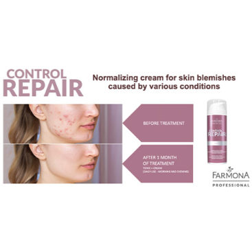 Best professional beauty treatments improving skin imperfections.